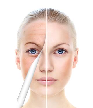 Het verschil tussen huidverbetering en anti aging element of beauty - Huisverbetering m ...