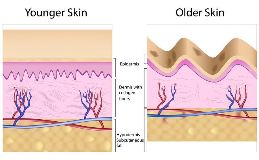 rimpel huid